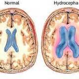 Hydrocephalus, Hydrocephalus awareness, ventricles